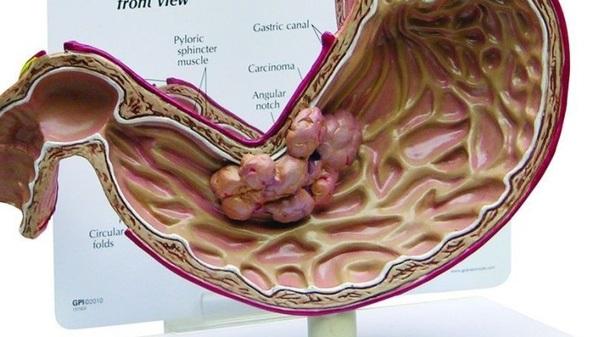 Thực phẩm bẩn là nguyên nhân hàng đầu dẫn đến ung thư